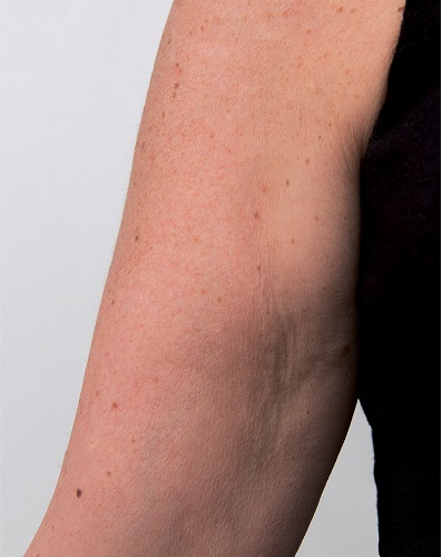 Viscoderm Arm - After